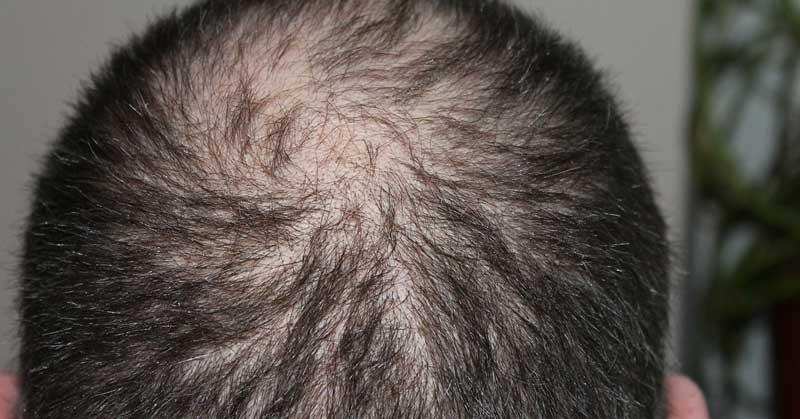 ćelavost kose i lek