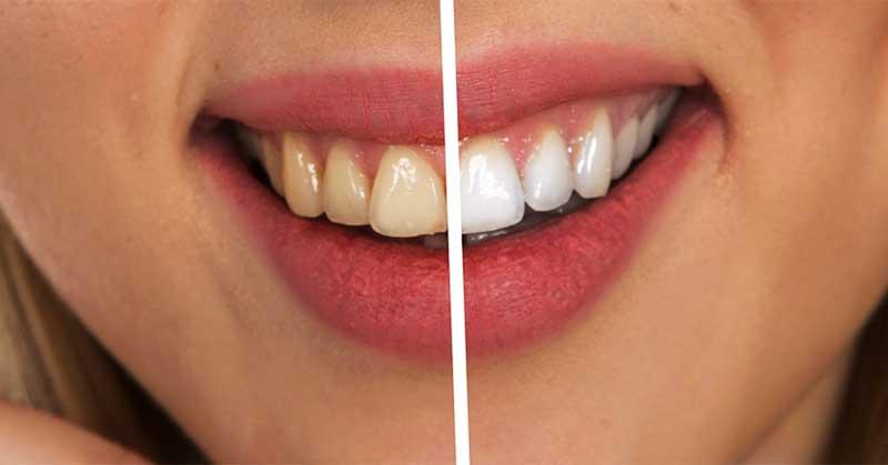 hidrogen za izbeljivanje zuba