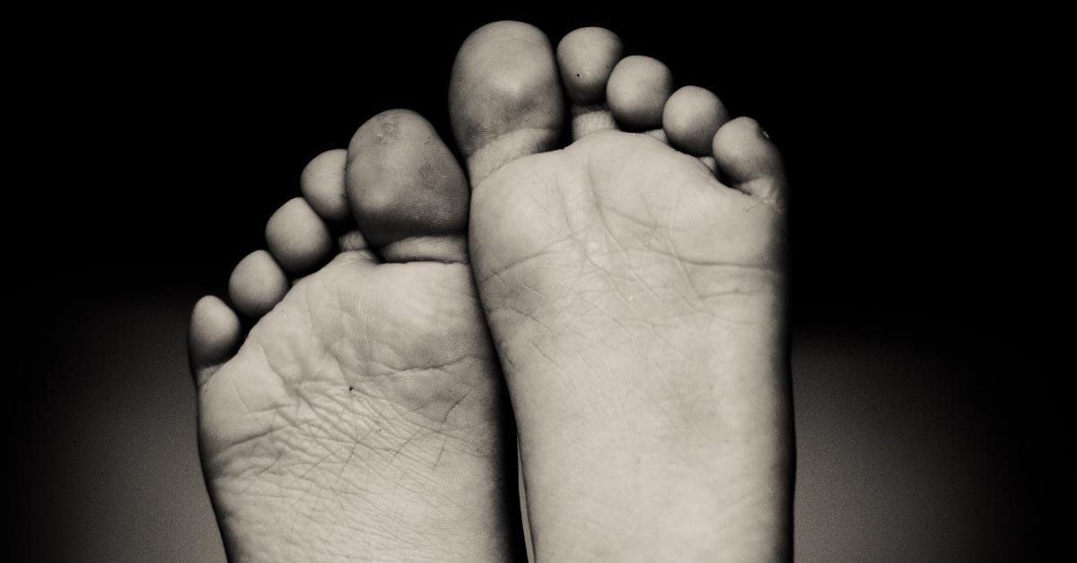 Ispucala koža izmedju prstiju na nogama