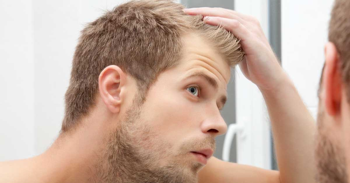 Nega Muške Kose Saveti Kako Sprečiti ćelavost Koje Ne