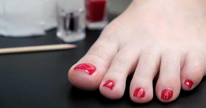 zadebljani nokti na nogama nega