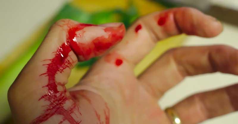 hemoroidi koji krvare