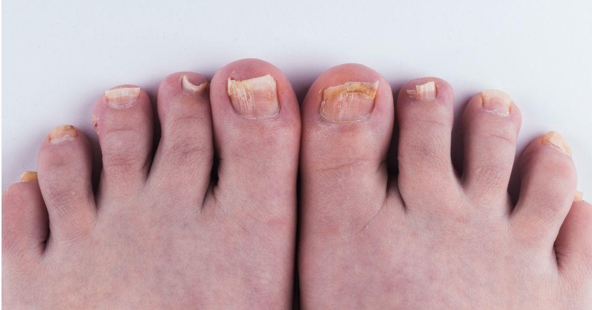 gljivice na noktima pre