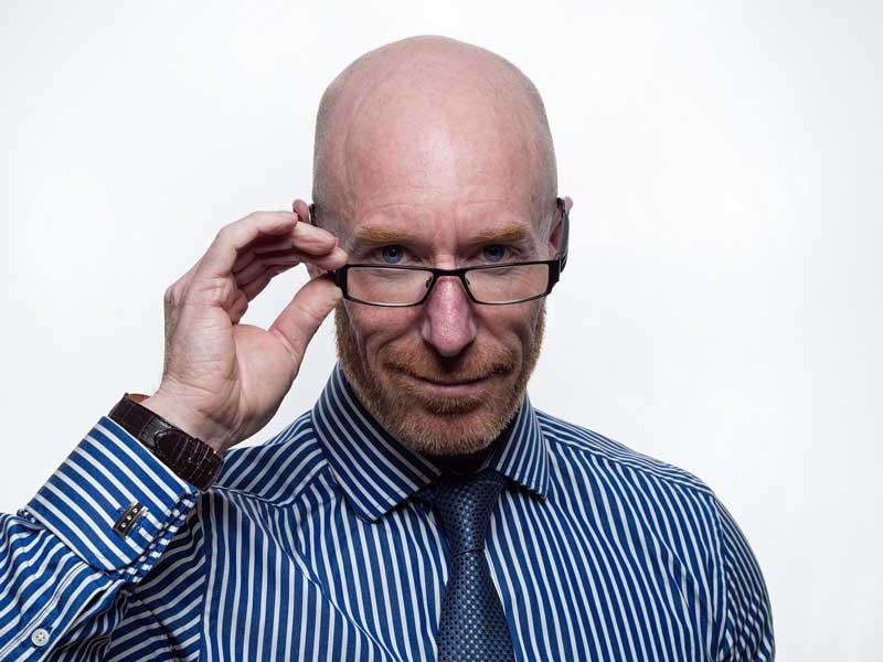 androgena alopecija kod muškaraca