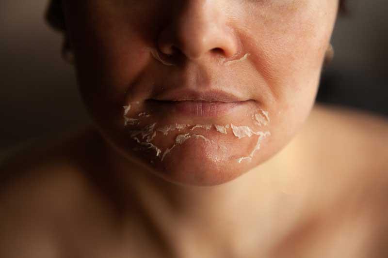 hemijski piling perutanje kože