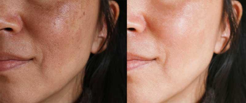 hiperpigmentacijana licu