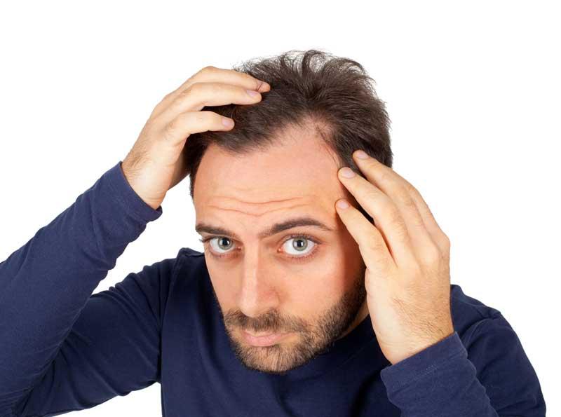opadanje kose na zaliscima