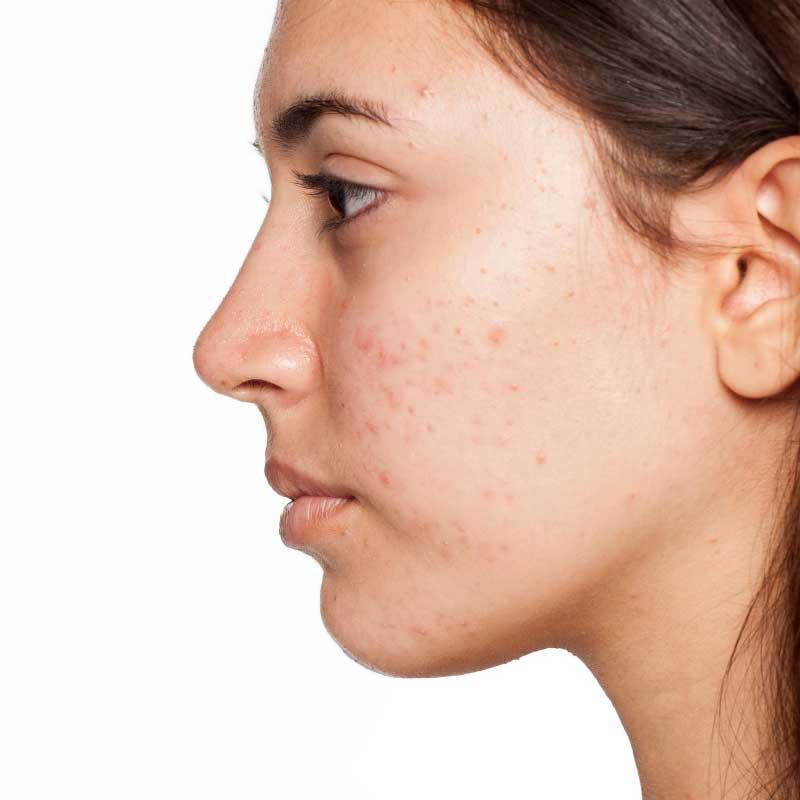 koža sklona bubuljicama