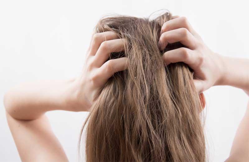 rešenje za masnu kosu