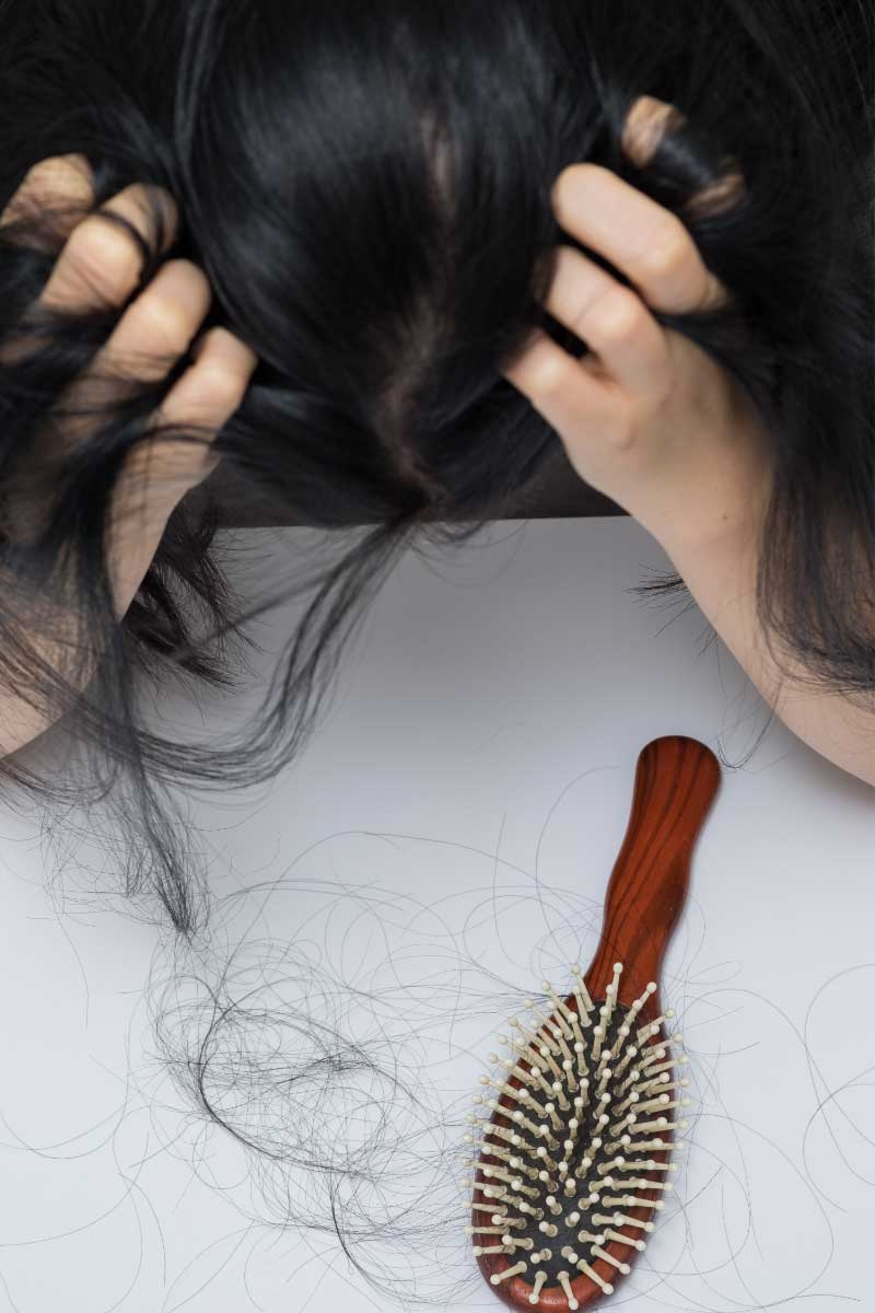 postporođajno opadanje kose