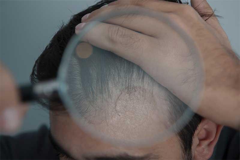proređena kosa kod muškaraca