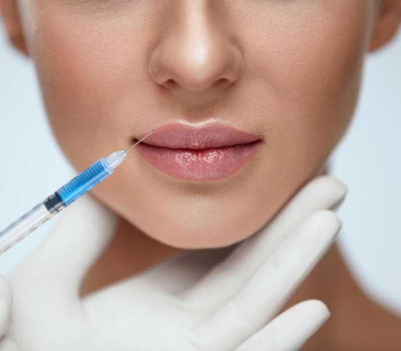 povećanje usana hijaluronom