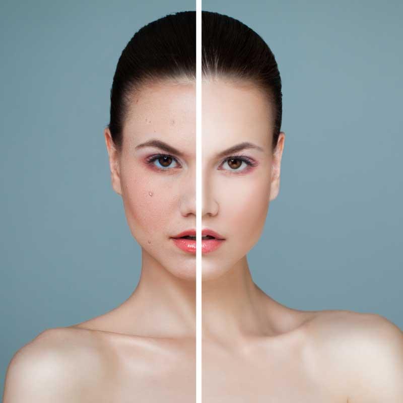 tretmani lica protiv bubuljica