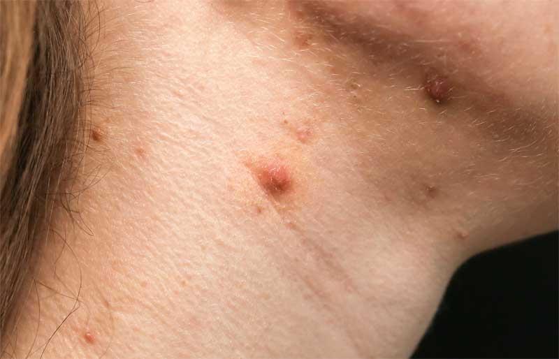 akne na vratu