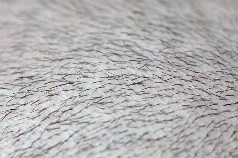 mikropigmentacija skalpa rezultati