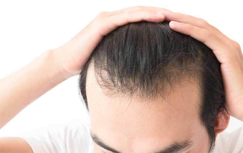 tretman protiv opadanja kose kod muškaraca