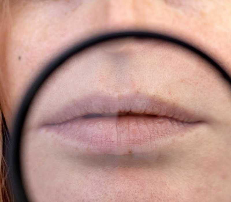 rešenje za ispucale usne