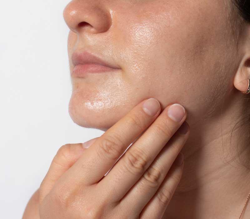 cirkulacija kože lica