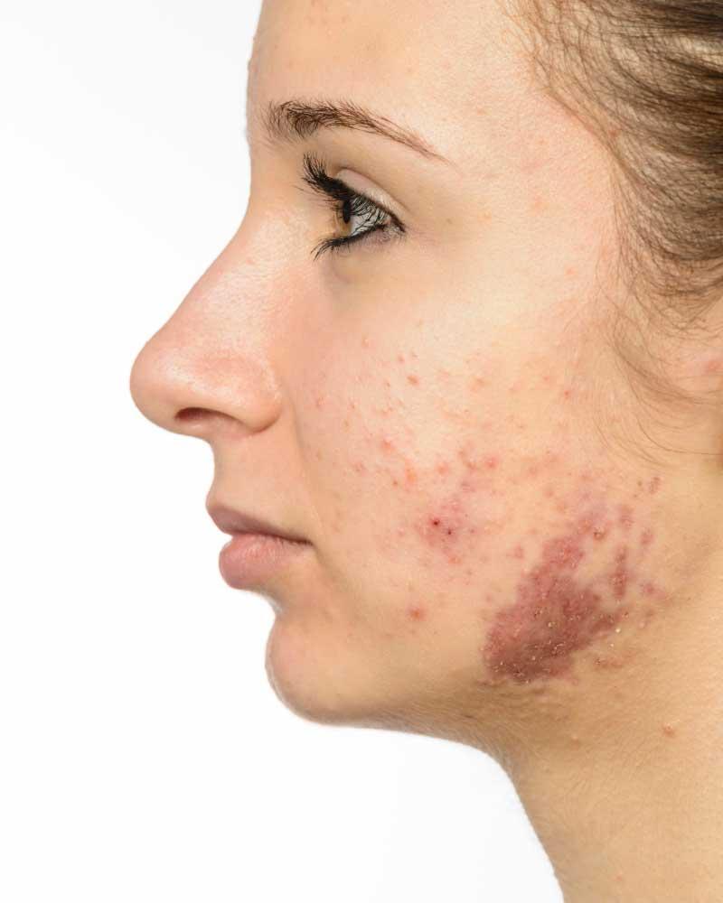 fleke od akni na licu