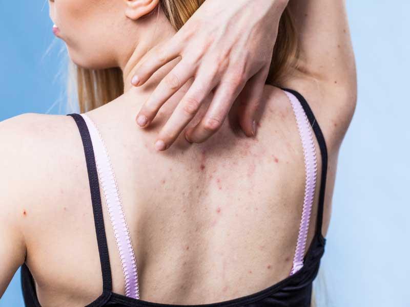 fleke od bubuljica na leđima