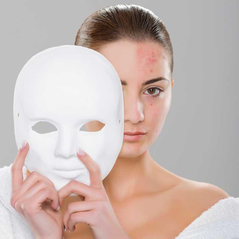 acne vulgaris lečenje