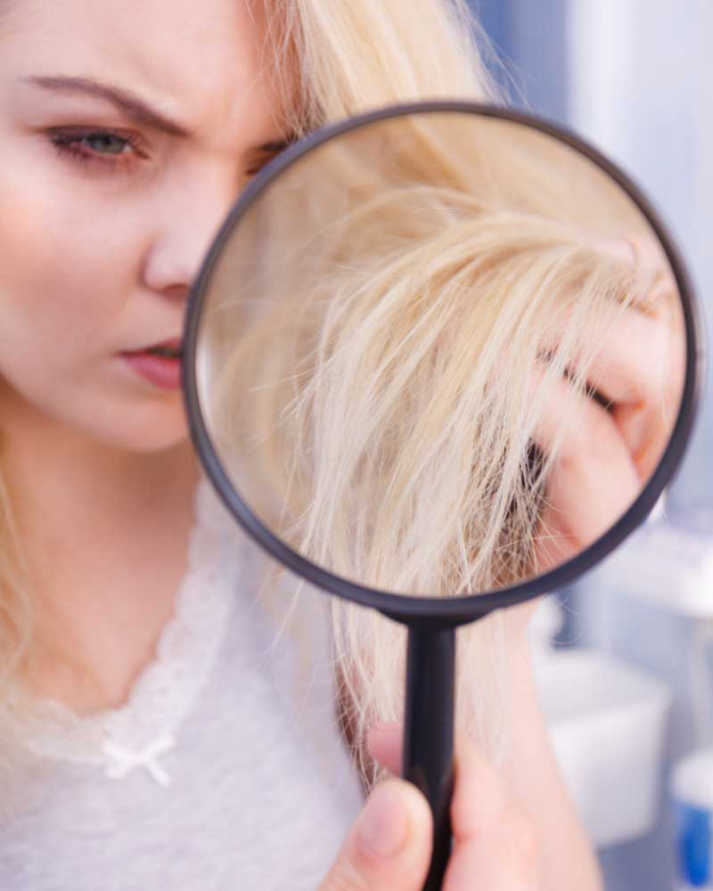 oštećena kosa od blanša