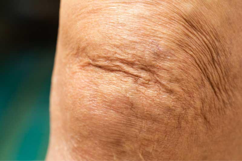 podmlađivanje kolena