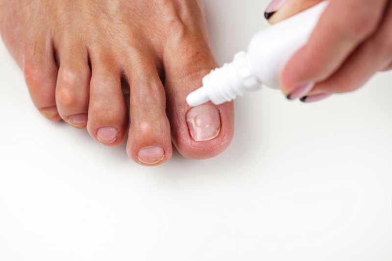 čuvarkuća za gljivice na noktima upotreba