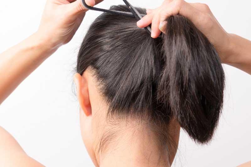 trakciona alopecija uzrok