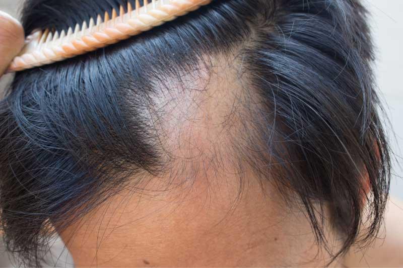 trakciona alopecija simptomi