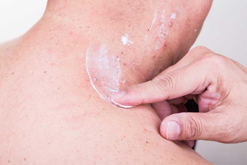antibiotska krema za akne