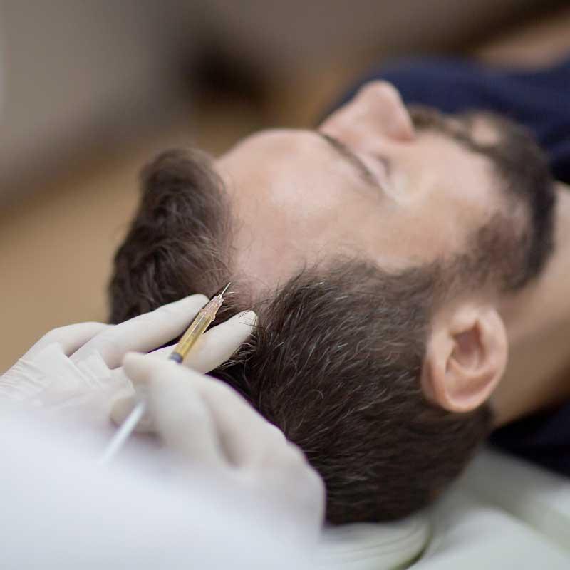 prp tretman protiv opadanja kose