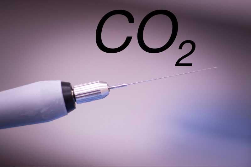 CO2 protiv celulita