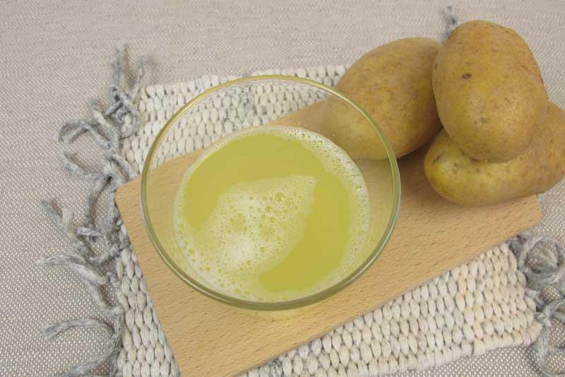 sok od krompira protiv strija