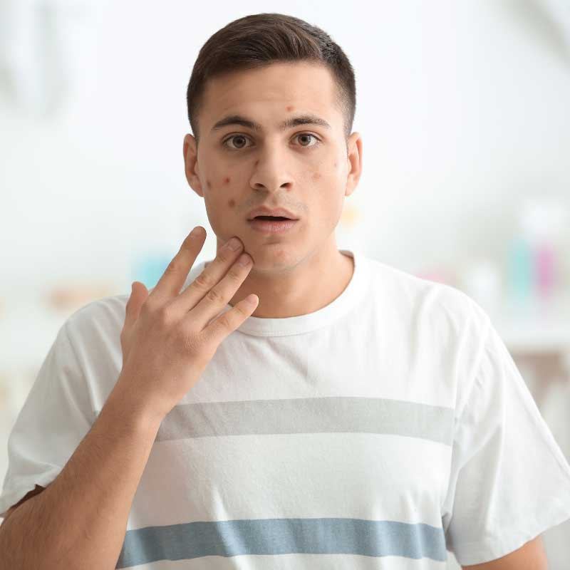 benzoil peroksid za akne