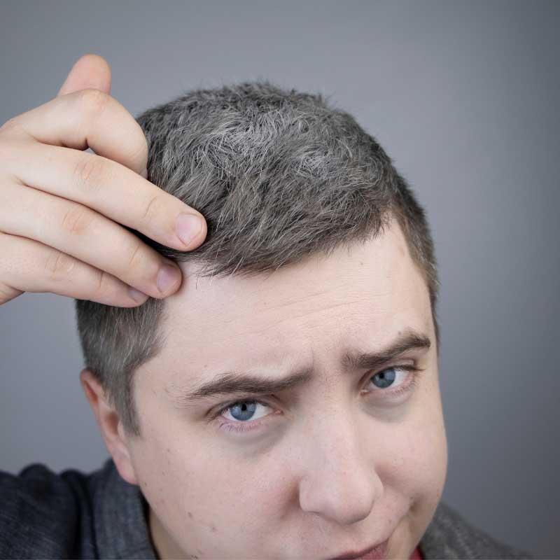 nadogradnja kose kod muškaraca