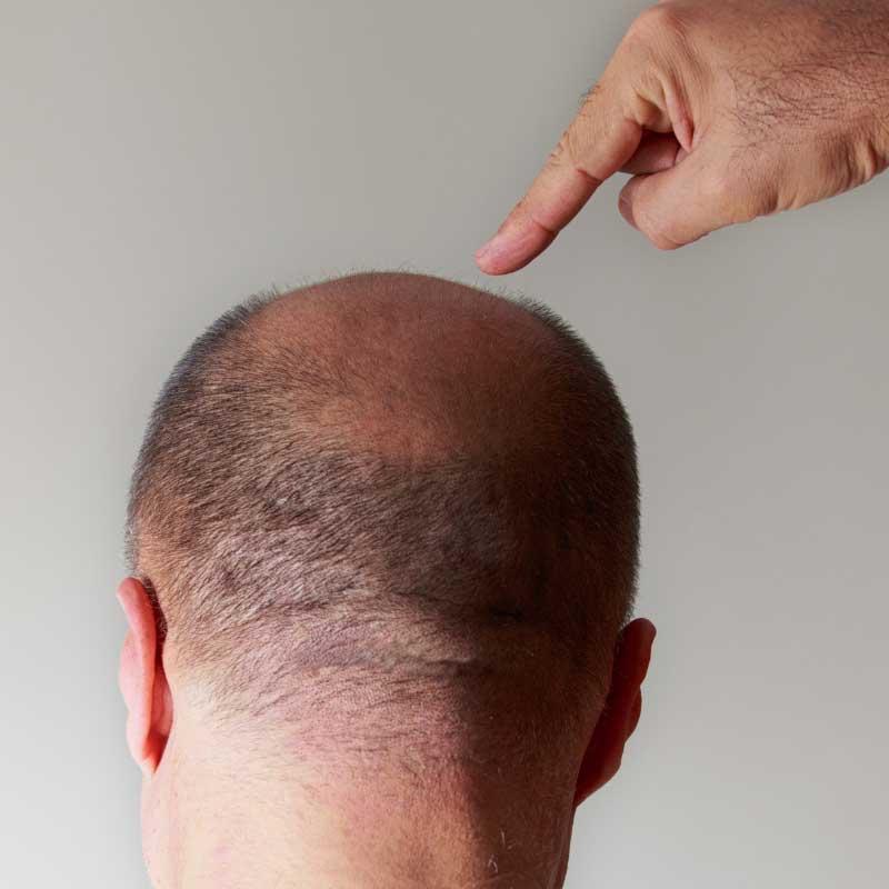 opadanje kose posle korone kod muškaraca
